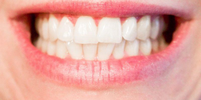 tandretning gjort nemt og bekvemt
